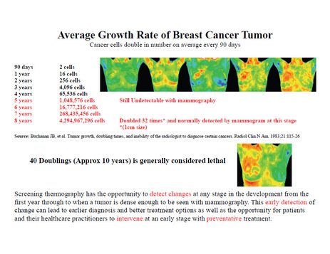 Average Growth Rate of Breast Cancer Tumor