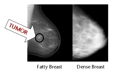 Dense Breast Mammogram