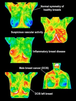 Breast Abnormalities